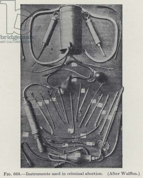 Instruments used in criminal abortion (b/w photo)