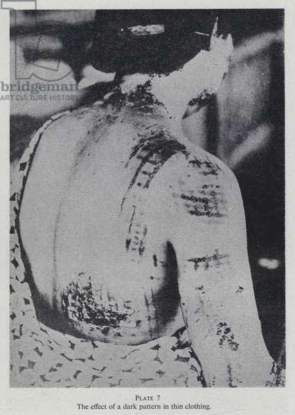 Burns suffered by a victim of the atom bomb dropped on Hiroshima, Japan, World War II, 1945 (b/w photo)