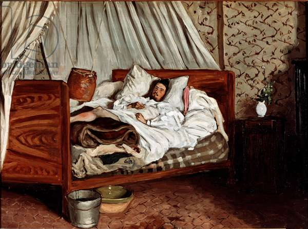 The improvised ambulance (Claude Monet wounds). Painting by Jean Frederic Bazille (1841-1870), 1865. Musee d'Orsay.
