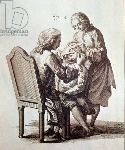 A Doctor operating on a cataract patient, illustration from the Medical Encyclopedia by Denis Diderot and Jean le Rond d'Alembert, 1772 (litho)