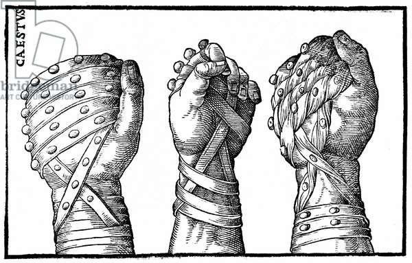"""Boxing gloves for Roman wrestlers - in """""""" Hieronymi mercurialis de Gymnastica"""""""", Venice edition, 1573."""