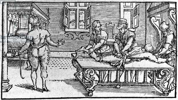 """Reduction of a dislocation, -in """"Traité Médical"""" by Ambroise Paré, circa 1560."""