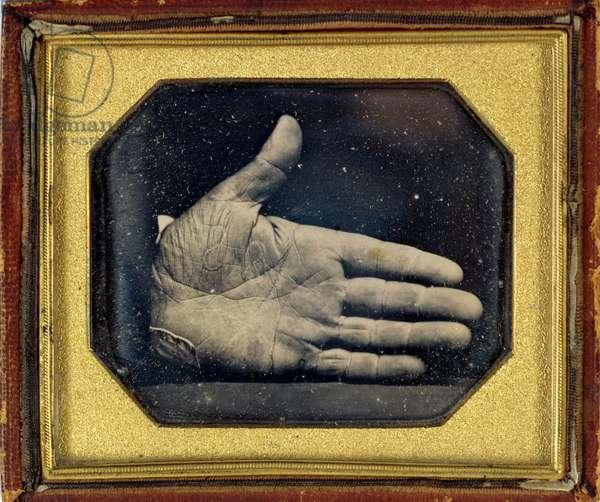 The Branded Hand, c.1845 (daguerreotype)
