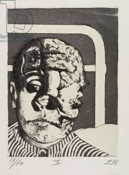 Transplantation (Transplant), plate 40 from Der Krieg (The War), 1924