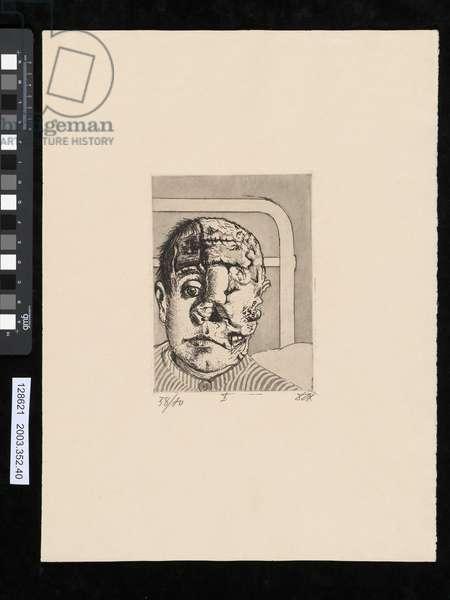 Skin graft, illustration from the portfolio 'Der Krieg', 1924 (etching, aquatint & drypoint)