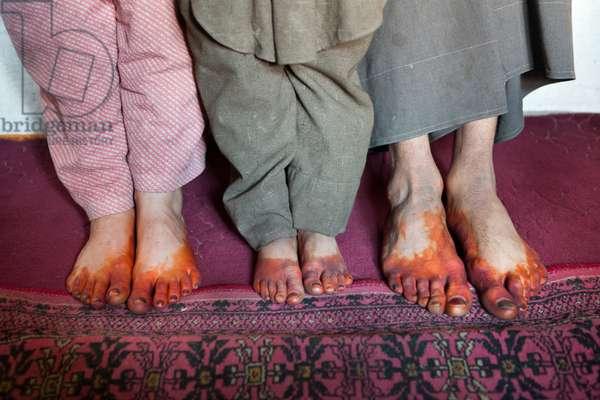 A Wakhi family applies henna on their feet and fingers to protect from the cold (photo)