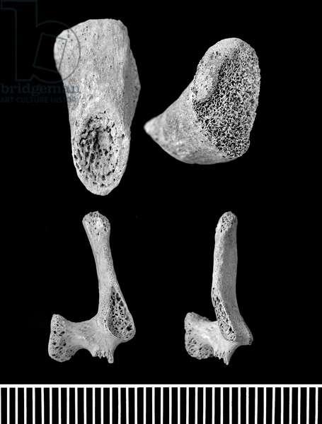Part of human perinatal skeleton