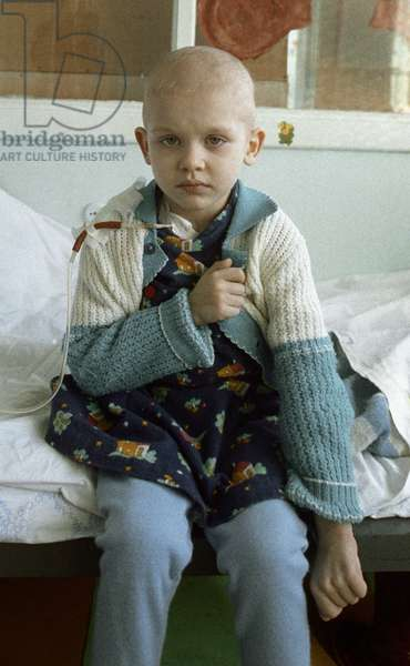 This little girl from the environs of Kiev was badly contaminated in the Chernobyl disaster, and is now in the Minsk hospital No. 1 hematological ward , 1990 (photo)