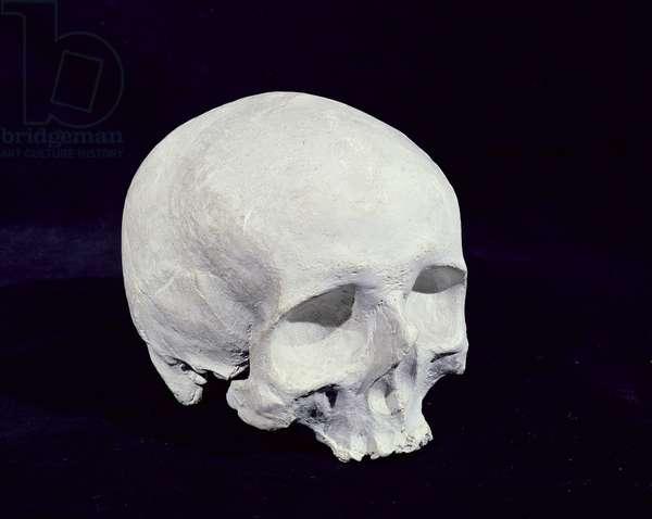 Duplicate cast of the cranium of Joseph Haydn, 1930s (plaster)