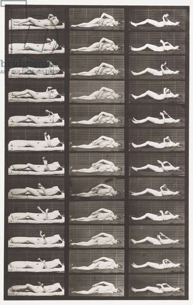Plate 544. Artificially-Induced Convulsions; A,B,C, While Lying, 1885 (collotype on paper)