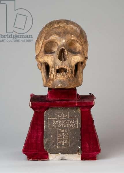 Skull of King Robert I (the Bruce), 1819