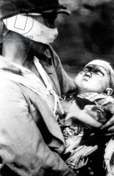 Victims of atomic bomb in Nagasaki, Japan, august 9, 1945