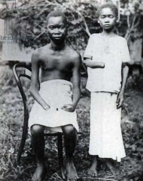 Amputation, 1900