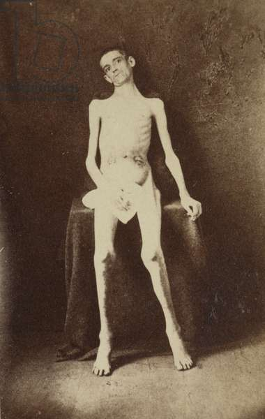 American Civil War soldier malnourished as a prisoner of war, 1864