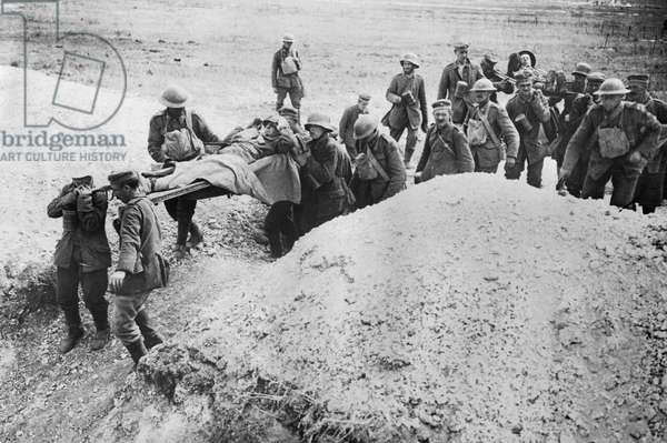 Germans Carry Allied Wounded, Europe, c.1918 (b/w photo)