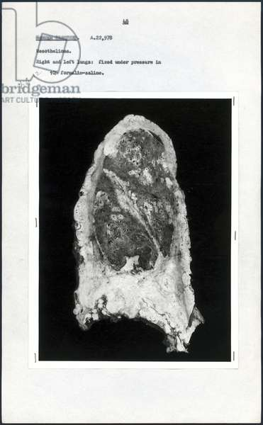 Pathology, Dissections Post-mortem photograph of diseased lung, c 1965