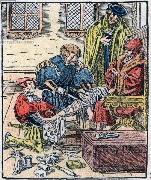 Amputation of a leg in the 16th century.