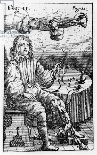 The Study of Injections (engraving) (b/w photo)