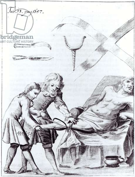 Surgical operation to amputate a leg (engraving) (b/w photo)