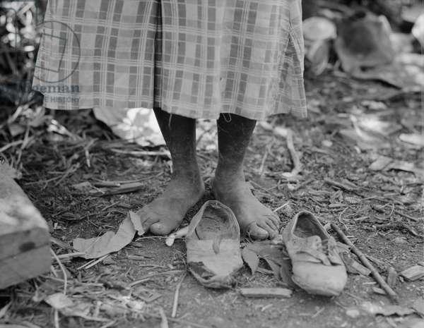 Feet of Afridan-American cotton hoer near Clarksdale, Mississippi, 1937 (b/w photo)