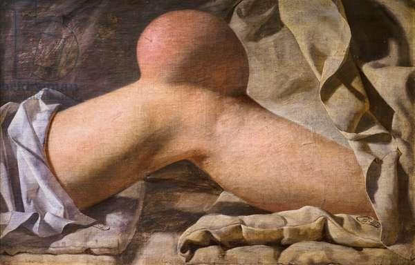 A Swelling in Regio Patellaris [knee], 1829 (oil on canvas)