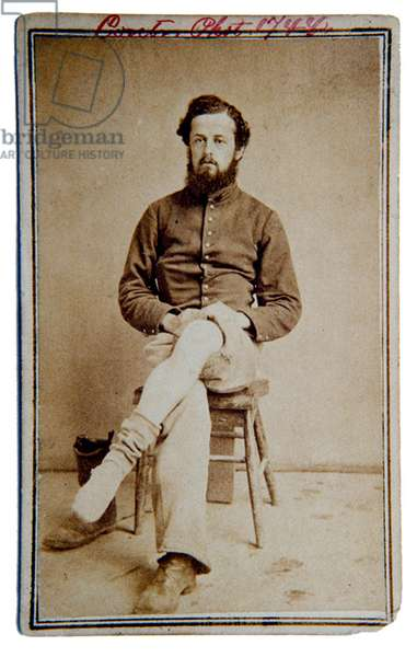 American Civil War,  Union soldier displaying wounded leg